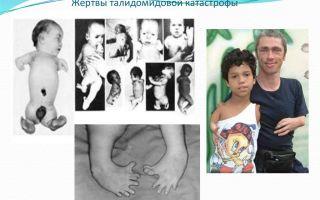 Жертвы талидомидовой катострофы
